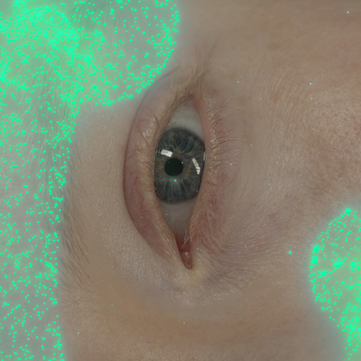 Close up of a white woman's eye. She is horizontal. Green shiny dots make up the shape of long stemmed mushrooms